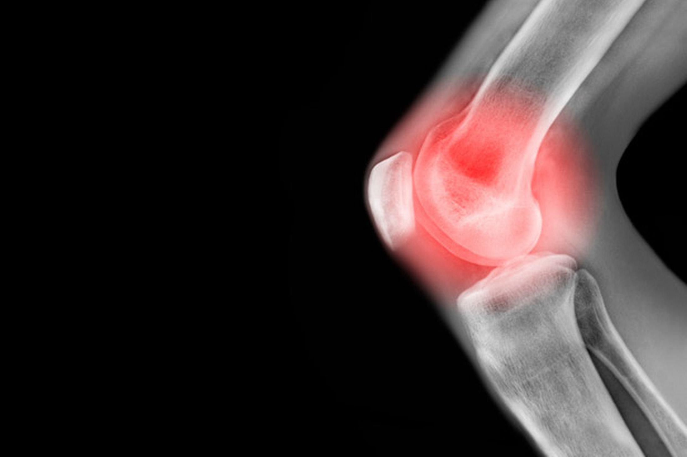 Living with Arthritis in the Knee
